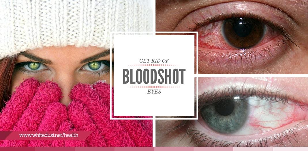 how to get rid of bloodshot eyes