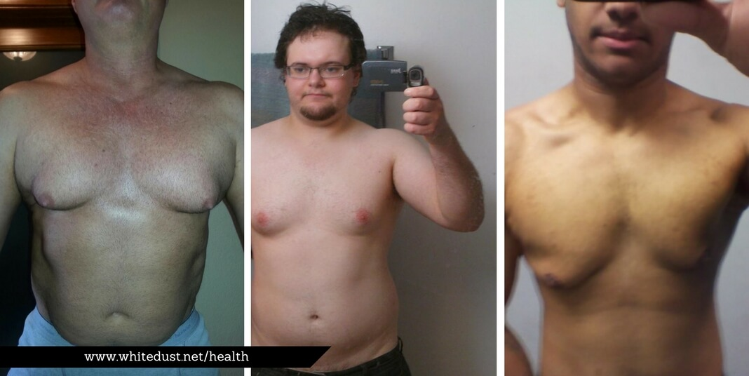 What Is Gynecomastia And How To Cure It