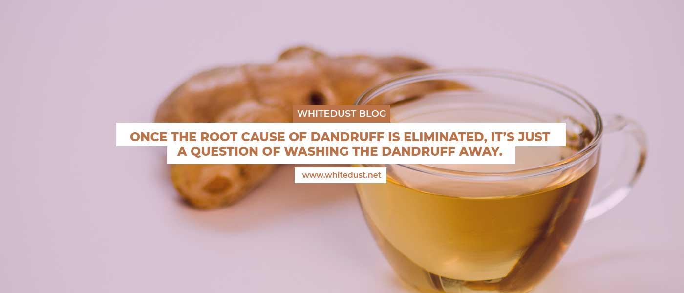 natural remedies for dandruff